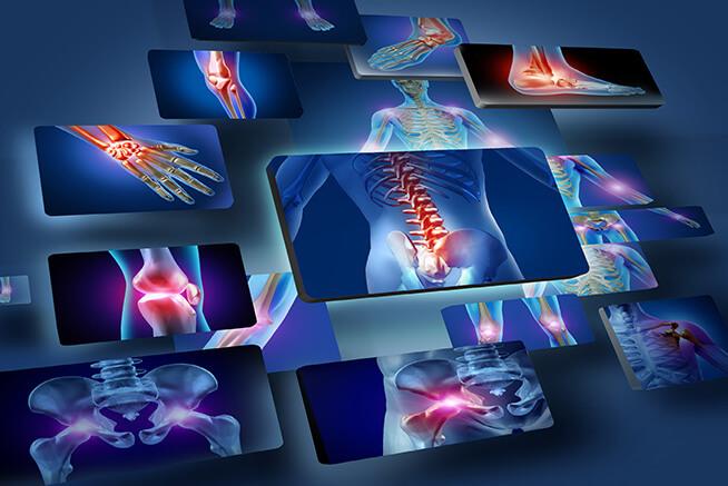 Pós Graduação em Prevenção, Reabilitação e Exercícios nas Lesões Traumáticas e nas Doenças Musculoesqueléticas